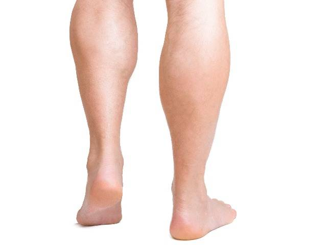 Calf Implants, Calf Augmentation